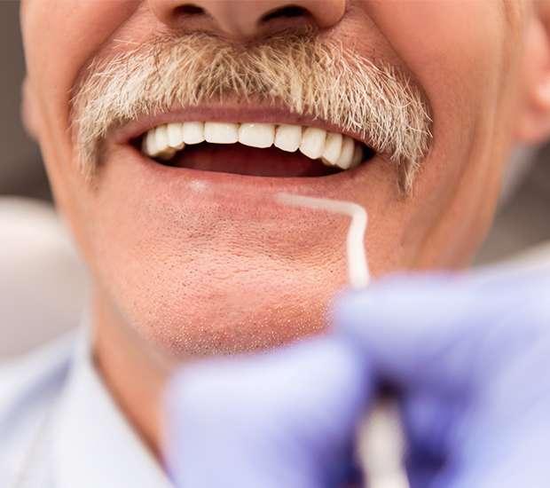 West Hollywood Adjusting to New Dentures