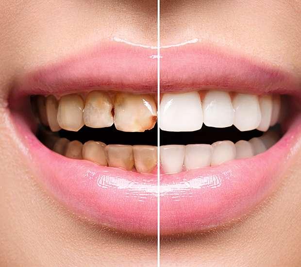 West Hollywood Dental Implant Restoration