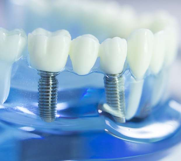 West Hollywood Dental Implants