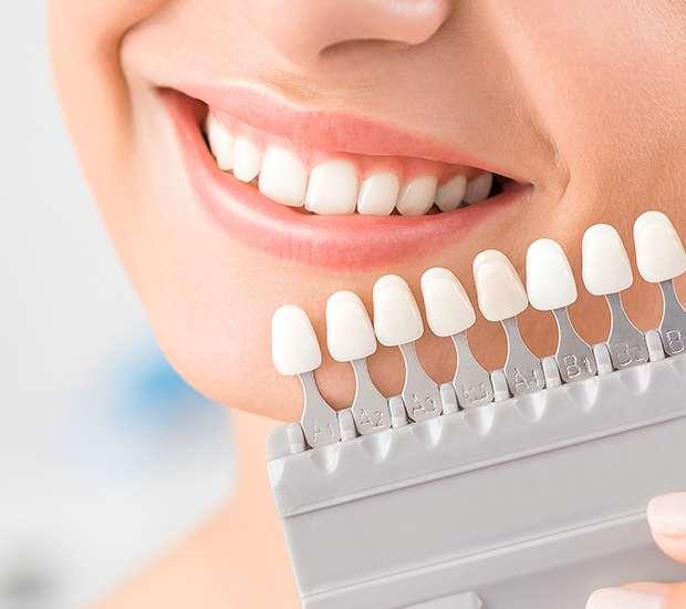 West Hollywood Dental Veneers and Dental Laminates