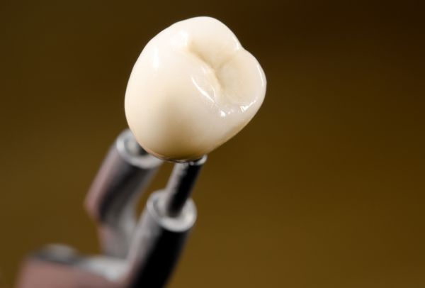 Dental Crown Options And Their Advantages