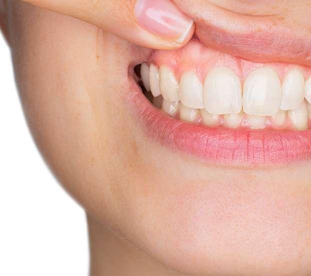 West Hollywood Gum Disease