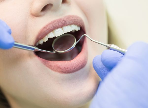 The Pros And Cons Of Dental Bonding