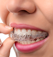 Clear Aligners - Almost Invisible Braces West Hollywood, CA