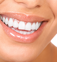 Teeth Whitening Services West Hollywood, CA